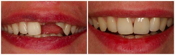 Efekt po zabiegu wstawiania implantów